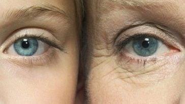 como evitar las arrugas y el envejecimiento de la piel